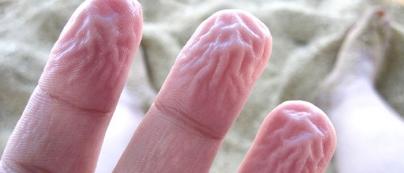 Dedos arrugados - Caldaria