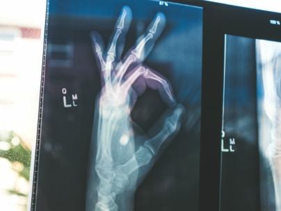 Osteoporosis y termalismo
